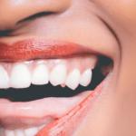 ピンク色の歯茎に「ガムピーリング」