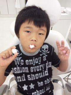 乳歯の抜歯