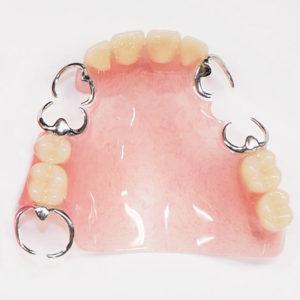 保険適用入れ歯