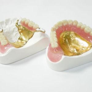 金属床義歯(写真)