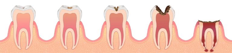虫歯の進行段階と治療方法