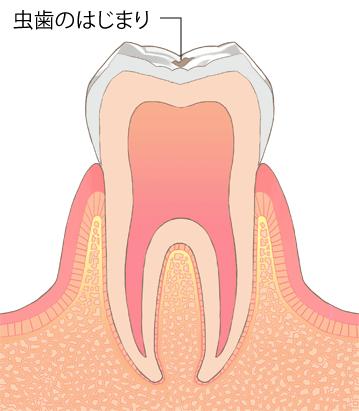 虫歯進行段階C0:なりかけ