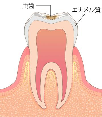 虫歯進行段階C1-エナメル質の初期虫歯