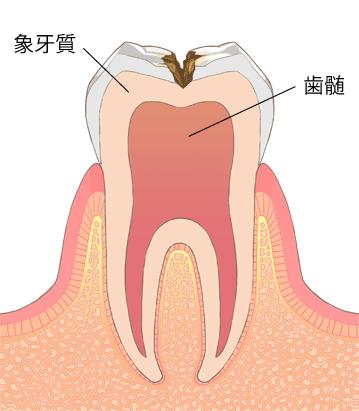 虫歯進行段階C2-象牙質の中期虫歯
