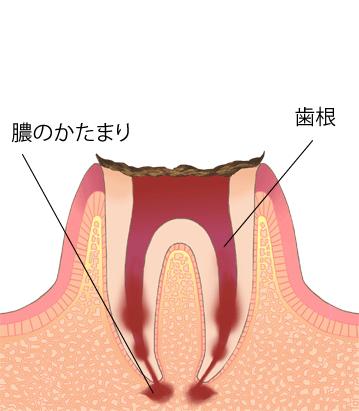 虫歯進行段階C4-歯の根のごく重度な虫歯