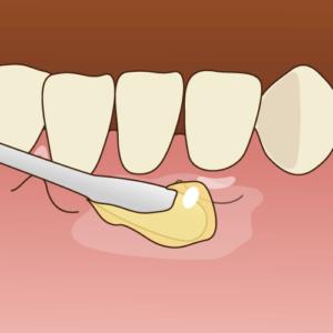 歯茎に表面麻酔を塗る-ガムピーリングの流れ