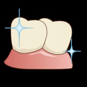 フッ素の塗布-歯のクリーニングの流れ
