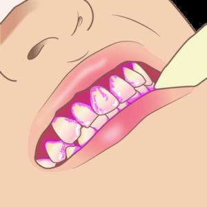 染め出し-歯のクリーニングの流れ