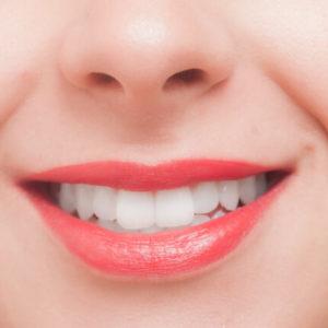 歯科ホワイトニング