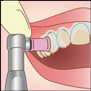 歯のクリーニング-オフィスホワイトニングの流れ